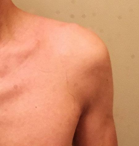 肩の関節痛